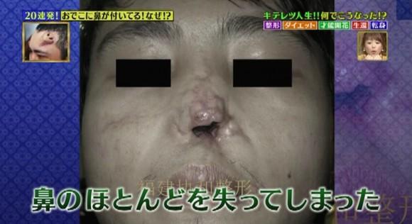 おでこに鼻があるワケとは!?-2