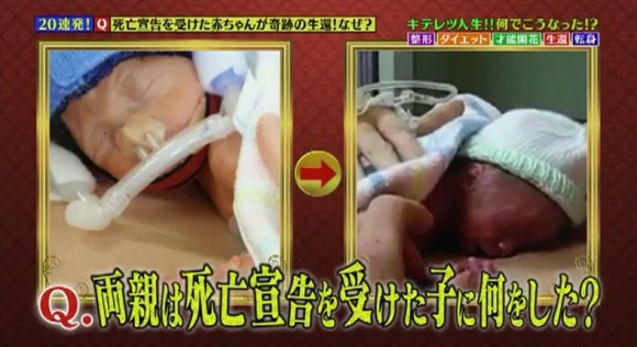 死亡宣告を受けた赤ちゃんが奇跡の生還!なぜ?